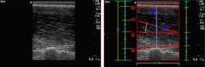 Ejemplo de la medición de las variables arquitectónicas desde una ecografía.