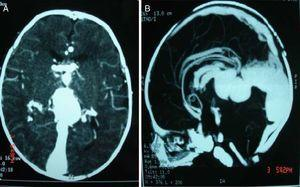 A) and B) Computerized axial brain tomography evidencing important dilation and tortuosity of vein of Galen.