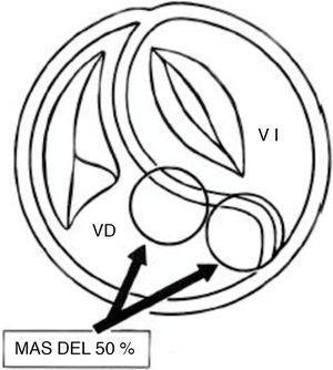 Esquema que muestra el nacimiento de las grandes arterias en más del 50% a partir del ventrículo derecho. VD: ventrículo derecho; VI: ventrículo izquierdo.
