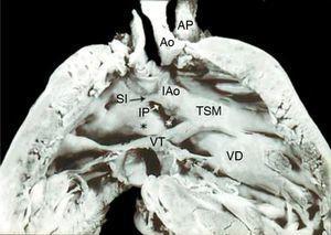 Vista interna del ventrículo derecho con doble salida. Obsérvese la aorta anterior derecha, la arteria pulmonar posterior izquierda, los infundíbulos subaórtico amplio y subpulmonar estenótico, el pliegue infundíbulo ventricular (asterisco negro) y la comunicación interventricular (asterisco blanco). VD: ventrículo derecho; SI: septum infundibular; TSM: trabécula septomarginal; Ao: aorta; AP: arteria pulmonar; VT: válvula tricúspide; IP: infundíbulo subpulmonar; IAo: infundíbulo subaórtico.