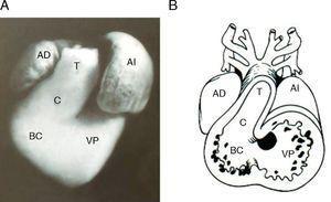 Corazón embrionario de pollo que muestra las cámaras cardíacas primitivas. A) Fotografía frontal. B) Esquema que muestra el interior el interior de la fotografía. T: tronco, AI: aurícula izquierdo; BC: bulbus cordis; C: cono; VP: ventrículo primitivo; AD: aurícula derecha.