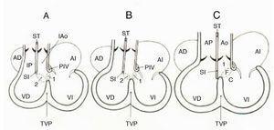 Esquemas que muestran el proceso de conexión ventriculoarterial en el corazón normal según los horizontes de Streeter. A) Horizonte XIV que muestra la doble salida del ventrículo derecho. B) Horizonte XVII. Obsérvese el cabalgamiento aórtico. C) Horizonte XIX que muestra la conexión ventriculoarterial concordante. C: cameral; 2: comunicación interventricular secundaria; 1: formaen bulboventricular primario; F: foraminal; I: infundibular; ST: septum troncal; TVP: tabique ventricular primitivo; VD: ventrículo derecho; VI: ventrículo izquierdo; AD: aurícula derecha; AI: aurícula izquierda; SI: septum infundibular; Ao: aorta; AP: arteria pulmonar; IP: infundíbulo pulmonar.