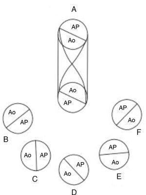 Esquemas que muestran el espectro de posiciones de las vías de salida y las grandes arterias en los diferentes tipos de doble salida de ventrículo derecho. A) Tabicación troncoconal normal, B) aorta posterior derecha y pulmonar anterior izquierda, C) aorta derecha y pulmonar izquierda, D) aorta anterior derecha y pulmonar posterior izquierda, E) aorta anterior y pulmonar posterior, F) aorta anterior izquierda y pulmonar posterior derecha. Ao: aorta; AP: arteria pulmonar.