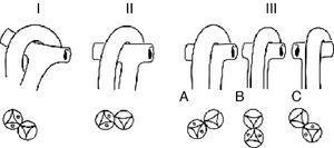 Esquemas que muestran la clasificación de la doble salida de ventrículo derecho según la relación entre las grandes arterias: I, ligeramente entrecruzadas; II, paralelas en el plano frontal (lado a lado); III, paralelas en el plano posterior. A: aorta anterior; B: aorta anterior; C: aorta anterior izquierda.