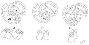 Esquemas de cortes transversales de la base del corazón (superiores) y las posiciones de las vías de salida (inferiores). A) Salidas anteroposteriores (complejos de Eisenmenger y Fallot), B) salidas lado a lado (complejo de Taussig-Bing), C) salidas anteroposteriores con aorta anterior. *Discontinuidad atrioventricular sigmoidea. VD: ventrículo derecho.