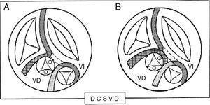 A) Esquemas que muestran un solo infundíbulo y, B) 2 infundíbulos en la doble cámara de salida de ventrículo derecho (DCSVD). VD: ventrículo derecho; VI: ventrículo izquierdo.