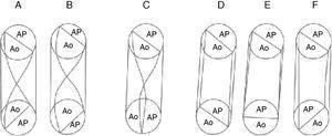 Esquemas que muestran diferentes grados de torsión del tabique troncoconal en la doble salida de ventrículo derecho: A) 135° (complejo de Eisenmenger); B) 135° (tetralogía de Fallot); C) 90° (complejo de Taussig-Bing); D) 0° (aorta anterior derecha); E) −45° (aorta anterior); F) −90° (aorta anterior izquierda). Ao: aorta; AP: arteria pulmonar.
