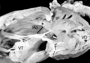 Vista interna del ventrículo derecho de un corazón con complejo de Eisenmenger. Obsérvese el infundíbulo subaórtico (IAo, barra negra) posterior derecho y el infundíbulo subpulmonar (IP) anterior izquierdo. La barra blanca señala la comunicación interventricular. *Septum infundibular. VT: válvula tricúspide; VD: ventrículo derecho.