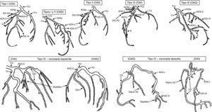 Representación gráfica de los tipos de doble ADA. ADAp: arteria descendente anterior proximal; ADA-C: arteria descendente anterior corta; ADA-L: arteria descendente anterior larga; CD: coronaria derecha; Cx: circunfleja; DG: diagonal; OAD: oblicua anterior derecha; OAI: oblicua anterior izquierda; S: septales; TCI: tronco coronario izquierdo; VD: ventrículo derecho; VI: ventrículo izquierdo. Modificada de Spindola-Franco H et al.3.