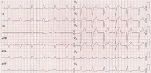 ECG del paciente después de la fibrinólisis que muestra RS con BRIHH.