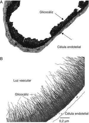 Representación del glucocáliz endotelial como se ve al microscopio electrónico con rojo de rutenio (A) y con azul alciano (B), sus dimensiones son variables según el vaso estudiado. (Dibujos basados en micrografías de Governeur et al.38 y de Becker et al.33).