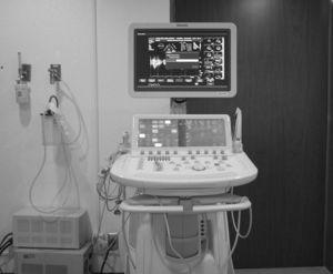 Ecocardiograma de revelado fotográfico. Nótese la disminución de la pendiente E-F y el grosor de la valva anterior de la mitral, en un paciente con estenosis de la misma. (Cortesía del Doctor Antonio Lorenzo).