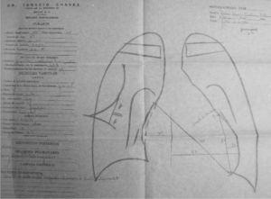 Ortodiagrama en papel parafina. Paciente con estenosis mitral: trazos realizados por el maestro Chávez. (Cortesía del doctor Ignacio Chávez Rivera).