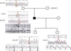 Familia con síndrome de Brugada mostrando la derivada precordial V2 del ECG y el análisis genético molecular de las mutaciones en el canal de sodio (SCN5A).