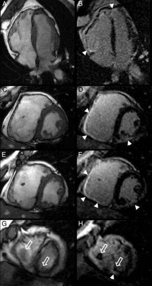Secuencias cine SSFP (A, C, E, G) y secuencias de realce tardío (B, D, F, H) en los planos 4 cámaras (A, B) y eje corto (C, D, E, F, G, H). El estudio en fases tardías puso de manifiesto realce de gadolinio en las caras anterior e inferior del ventrículo derecho y en los segmentos inferior medio, inferolateral medio y ápex del ventrículo izquierdo, de distribución predominantemente subepicárdica (puntas de flecha). Nótense los trombos intracavitarios en el ápex de ambos ventrículos (flechas abiertas en G y H).