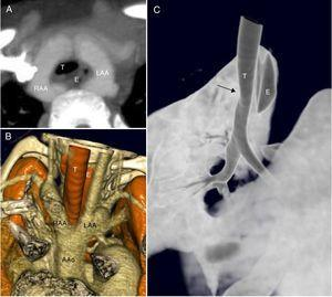 A) Reconstrucción MIP. Proyección axial oblicua en donde se aprecia la relación entre el anillo vascular completo y la tráquea (T) y el esófago (E) que discurren por dentro del mismo. B) reconstrucción volumétrica de estructuras vasculares y vía aérea. C) Reconstrucción volumétrica de superficie para valorar la vía aérea. En esta imagen se aprecia la ligera impronta que produce el anillo vascular sobre la pared anterior de la tráquea, sin estenosis significativa. AAo: ascending aorta (aorta ascendente); LAA: left aortic arch (arco aórtico izquierdo); RAA: right aortic arch (arco aórtico derecho).