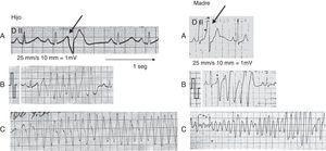 Izquierda, hijo. A) Extrasístole ventricular con corto intervalo de acoplamiento, sin respuestas repetitivas, morfología semejante a la que desencadena la taquicardia y la fibrilación ventricular. B) Extrasístole ventricular con corto intervalo de acoplamiento y episodio de taquicardia helicoidal. C) Episodio de fibrilación ventricular (reanimado). Derecha, madre. A) Extrasístole ventricular con corto intervalo de acoplamiento, sin respuestas repetitivas, morfología diferente a la que desencadena la arritmia. B) Extrasístole ventricular con corto intervalo de acoplamiento que origina respuestas repetitivas ventriculares. C) Episodio de fibrilación ventricular (reanimado).