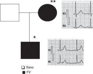 Árbol genealógico y electrocardiogramas. En negro, sujetos con fibrilación ventricular, electrocardiogramas basales normales. * Hijo, vivo. ** Madre, fallecida.