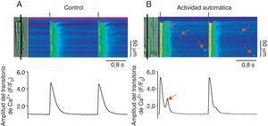 Participación de la fuga diastólica de Ca2+ en la generación de actividad automática. Imágenes representativas de los aumentos transitorios de Ca2+ producidos por estimulación eléctrica (0.5Hz, líneas verticales verdes) en cardiomiocitos control (A, control) y con fuga de Ca2+ anormal durante la diástole (B, actividad automática). Las células cargadas con el indicador Fluo-3 se escanearon en la modalidad de line-scan en el microscopio confocal (línea negra), lo que permite generar las imágenes bidimensionales donde el ejeX representa el tiempo en segundos y el ejeY representa la longitud de la célula en micrómetros. La amplitud del transitorio de Ca2+ intracelular (F/F0) producido por el estímulo eléctrico se muestra debajo de cada imagen. Las flechas rojas en las imágenes bidimensionales indican la fuga de Ca2+ durante la diástole en forma de chispas de Ca2+ y ondas de Ca2+.