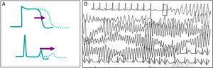 A. Representación esquemática de la prolongación del potencial de acción que se traduce en prolongación del intervalo QT en el electrocardiograma. B. Episodio de taquicardia ventricular polimorfa autolimitado en una paciente con historia de síncope y síndrome de QT largo.