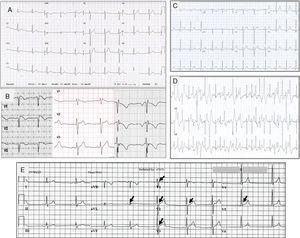 Trazos electrocardiográficos representantivos de: A. Síndrome de QT corto; B. Síndrome de Brugada. A la izquierda el ECG tipo I, en medio tipo II y a la derecha tipo III; C. Trazo basal en reposo de un paciente con TVPC; D. Trazo del mismo paciente C, al esfuerzo que muestra múltiples extrasístoles polimórficas; E. Paciente de 18 años con fibrilación ventricular y repolarización precoz. Corazón estructuralmente normal. Las flechas indican elevación del punto J, u «onda J».