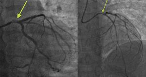 Espasmo importante de tronco con persistencia, tras nitroglicerina intracoronaria, de estenosis angiográficamente intermedia con calibre menor de 3mm.