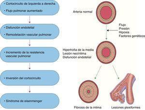 Fisiopatogénesis de la HAP secundaria a cardiopatía congénita.