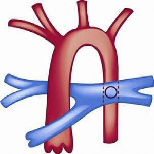 Fístula sistémico-pulmonar de Potts.