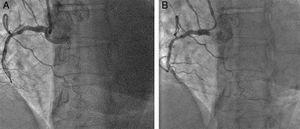 (A) The lack of guide catheter support was the cause of the failure to advance the guidewire and cross the chronic total occlusion (CTO). (B) A Guideliner catheter was advanced and a Pilot 150 wire crossed the CTO.