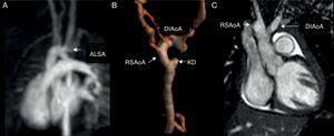 "CMR of the aorta. ALSA originates from the incomplete left aortic arch as shown in the CE-MRA on MIP (A) and 3D VR reconstructions (B). The KD originating from the descending aorta is shown in (B). A coronal SSFP view shows ""V"" shape of the double incomplete aortic arch (C). CMR, cardiac magnetic resonance; SSFP, steady state free precession; T2-W, T2-weighted; CE-MRA, contrast-enhanced magnetic resonance angiography; MIP, maximum intensity projection; 3D VR, 3-dimensional volume rendering; Ao, aorta; DIAoA, double incomplete aortic arch; RSAoA, right sided aortic arch; ALSA, aberrant left subclavian artery; KD, Kommerell's Diverticulum."