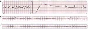 En A: Fibrilación ventricular y desfibrilación exitosa en un paciente con infarto agudo de miocardio y paro cardiaco súbito. En B y C: Ritmo agónico y asistolia en un paciente con insuficiencia cardiaca y paro cardiaco súbito.