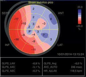 Imagen del bulls eye que muestra la DSL que corresponde al paciente 4 de la tabla 2. Se observa afección de la DSL a nivel de los segmentos inferiores y anterolaterales en toda su extensión.