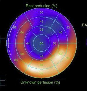 Imagen que muestra el estudio de medicina nuclear para evaluar la perfusión miocárdica (SPECT MIBI) que corresponde al paciente 4 de la tabla 2. Se aprecia un infarto no transmural del ápex y la región anterolateral en toda su extensión con presencia de viabilidad.