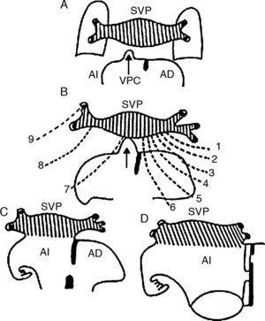 Esquemas que muestran la conexión venosa pulmonar secundaria con la aurícula izquierda a través de la vena pulmonar común. A) Acercamiento de la vena pulmonar común con el seno venoso pulmonar. B) Conexión de la vena pulmonar común (flecha) con el seno venoso pulmonar; obsérvese la atresia de los colectores primitivos de la conexión venosa pulmonar primaria (líneas discontinuas). C y D) Incorporación del seno venoso pulmonar al techo de la aurícula izquierda. AD: aurícula derecha; AI: aurícula izquierda; SVP: seno de las venas pulmonares; VPC: vena pulmonar común; 1: colector hacia la futura vena cava superior; 2: colector hacia el cayado de la vena ácigos; 3: colector hacia la vena cava superior; 4: colector hacia la porción sinusal de la aurícula derecha; 5: colector hacia la porción suprahepática de la vena cava inferior; 6: colector hacia la vena porta; 7: colector hacia el conducto venoso; 8: colector hacia el seno venoso coronario; 9: colector hacia la vena vertical.