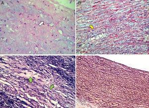 Microfotografía de la pared del aneurisma de la arteria pulmonar. 2A: se aprecian zonas basófilas de aspecto quístico en el intersticio (flecha blanca). H&E 40x. 2B: depósito intersticial de colágena tipo 1 en las zonas de reparación (flecha amarilla). Tinción de tricrómico de Masson 25x. 2C: fibras elásticas rotas y adelgazadas con depleción secundaria de las mismas (flechas verdes). Tinción de plata de van Gieson 40x. 2D: comparación con fibras elásticas intactas en arteria pulmonar normal. Tinción de plata de van Gieson 10x.