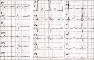 A)El ECG estándar muestra situs solitus en dextrocardia, ritmo sinusal, ondas P positivas en DI y negativas en aVR, ondas T negativas en DI, DII, aVL, onda T aplanada en aVF. B)Precordiales izquierdas: muestra disminución en el voltaje de la onda R de V1 a V6, ondas R altas en V1, ondas T aplanadas de V4 a V6. C)Precordiales derechas: muestra ondas R altas de V1 a V3; sugiere hipertrofia del ventrículo izquierdo.