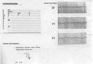 Derivaciones DI y V1 del primer paciente diagnosticado con el síndrome de muerte súbita, asociada a una morfología electrocardiográfica similar al bloqueo de rama derecha y elevación del segmento ST. Fue tomado poco después de un paro cardiaco reanimado mediante desfibrilación el 20 de noviembre de 1984. Es interesante que el cardiólogo lo interpretó como «taquicardia sinusal a 120lpm y bloqueo focal de rama derecha».