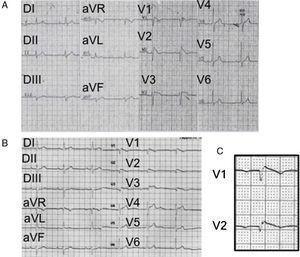 A) ECG (1988) del primer paciente con el síndrome donde se observa un patrón característico (tipo 1) con un intervalo PR prolongado, desviación del eje a la izquierda, sin onda S en V6 (lo que traduce la ausencia de un verdadero bloqueo de rama derecha). B) ECG del mismo paciente (2005), donde se aprecian las ondas épsilon descritas inicialmente por Fontaine en la displasia arritmogénica de ventrículo derecho. No se observa onda S en V6. C) Acercamiento de las derivaciones V1 y V2 para mostrar más claramente las ondas épsilon de Fontaine.