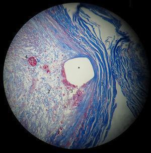 Fotomicrografía de arteria coronaria posterior a la electrodeposición que muestra el espacio que ocupaba el stent (*). Periféricamente hay gruesas fibras de colágena en color azul fuerte (1). Centralmente hay miofibroblastos (2) en una matriz de delgadas fibras de colágena (azul claro). Hay células gigantes multinucleadas (3) de reacción a cuerpo extraño en la periferia del stent (color rojo). Presencia de pequeños vasos de neoformación (4) (Masson ×40).