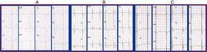 A) Fibrilación auricular con ritmo ventricular estimulado desde ápex de VD. Morfología de QRS similar a BRIHH y eje izquierdo. QRS: 176ms. B) ECG estimulación biventricular. QRS: 166ms. C) ECG estimulación tri-ventricular. QRS: 155ms.