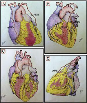 Técnica de anastomosis: A) AMII→DA, AMID→CD; B) AMII→DA, AMID→Dg (injerto en «Y invertida»); C) AMID→DA, AMII→Mg; D) AMII→DA, AMID→Mg (injerto en «Y invertida»).AMII: arteria mamaria interna izquierda; AMID: arteria mamaria interna derecha; CD: coronaria derecha; DA: descendente anterior; Dg: diagonal; Mg: marginal.