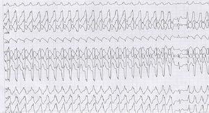 Taquicardia ventricular sostenida monomórfica en prueba de esfuerzo con imagen de bloqueo de rama izquierda.