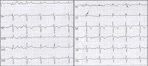 ECG en ritmo sinusal, las flechas señalan onda épsilon en derivaciones V1-V2. Además, presencia de inversión de ondas T de V1 a V4.