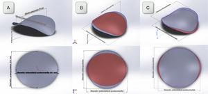 A) Reconstrucción tridimensional del AM utilizando un software de diseño gráfico a partir de las medidas obtenidas en el grupo de RS. Se representa una visión que muestre la silla de montar y otra visión superior. B y C): Reconstrucción tridimensional tanto al final de la diástole (gris) como al final de la sístole (rojo) utilizando las medidas obtenidas en el grupo de RS y FA respectivamente. Obsérvese en los pacientes en FA mayor circularidad del AM desde la visión superior.