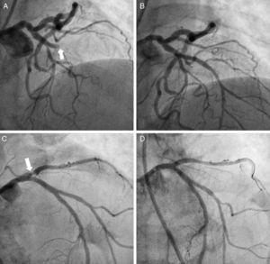A) Angiografía coronaria evidenciando oclusión completa de la ADA en su segmento proximal. B) Coronariografía posrevascularización coronaria percutánea. C) Estenosis crítica en segmento proximal de la ADA. D) Angiografía coronaria con restauración del flujo después de implantación de stent.