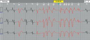 Trazo electrocardiográfico obtenido durante el estudio Holter de 24 h en una niña con miocardiopatía dilatada que evidenció un evento de taquicardia ventricular monomórfica no sostenida de 9 latidos.