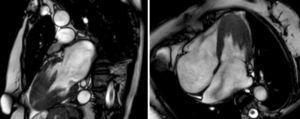 Imágenes de 2 y 4 cámaras de cardio-resonancia magnética en la cual se observa una hipertrofia severa apical del ventrículo izquierdo, grosor parietal del ventrículo derecho respetado y dilatación severa de ambas aurículas.