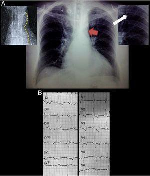 "(A) Posteroanterior chest radiograph demonstrating situs solitus, levocardia, levoapex, left sided aortic arch, normal pulmonary blood flow and grade III cardiomegaly, additionally the ""3"" sign (red arrow), inferior rib notching (white arrow) and calcified collateral vessels (*). Top left panel delineating the descending aorta contour from the same patient in the thoracic scout CT image. Top right panel is a zoom of the inferior rib notching. (B) Standard 12 lead EKG demonstrating a sinus rhythm, complete right bundle branch block, left anterior fascicular block, biventricular hypertrophy and systolic overload of the left ventricle."