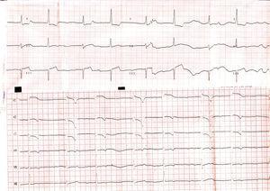 Electrocardiograma al ingreso mostrando bradicardia, bloqueo de rama derecha y ritmo de la unión, así como discreta elevación del segmento ST en derivaciones V1-V3.