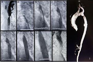 A) Aortografía (sustracción digital de imágenes), donde se observa sitio de coartación y dilatación importante de vasos colaterales. B-F) Secuencia de localización, inicio de despliegue (con visualización de formación y borramiento de escotadura en sitio de coartación), entrega e impactación en aorta con balón de stent BeGraft Bentley®. G) Reimpactación secuencial de stent con balones Atlas Bard® de 18 y 22mm. H) Aortografía final donde se aprecia adecuada impactación, posición y permeabilidad del stent BeGraft Bentley®. I) Caracterización de aorta mediante angiorresonancia magnética una semana posterior al procedimiento intervencionista, sin evidencia de movilización ni reestenosis de stent.